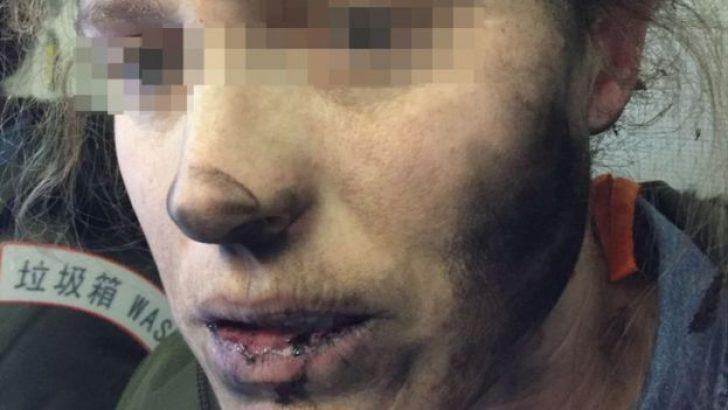 Uçakta kadın yolcunun kulaklığı patladı yüzü yandı